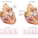 Information on Atrial Fibrillation