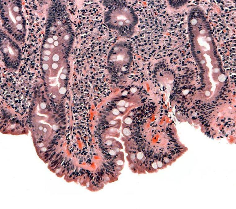 how to translate koshas into a manifested disease