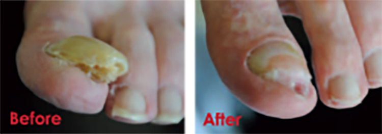 Before and After Using PACT®