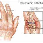 Effective All-Natural Tips for Arthritis - by Yvonne Duffy O'Shaughnessy